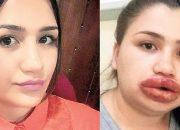 Merve hemşirenin dudakları alınabilir
