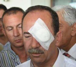 Edirne Belediye Başkanı'na saldıran tutuklandı