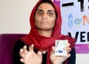 Koca şiddeti nedeniyle 11 parmağını kaybetti