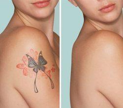 Renkli dövme silme işlemi nasıl yapılır?