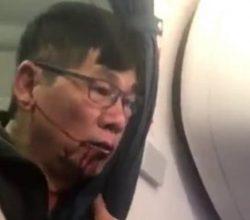 United Airlines ve uçaktan attığı doktor uzlaştı