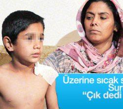 Üzerine sıcak su dökülen Suriyeli çocuk konuştu